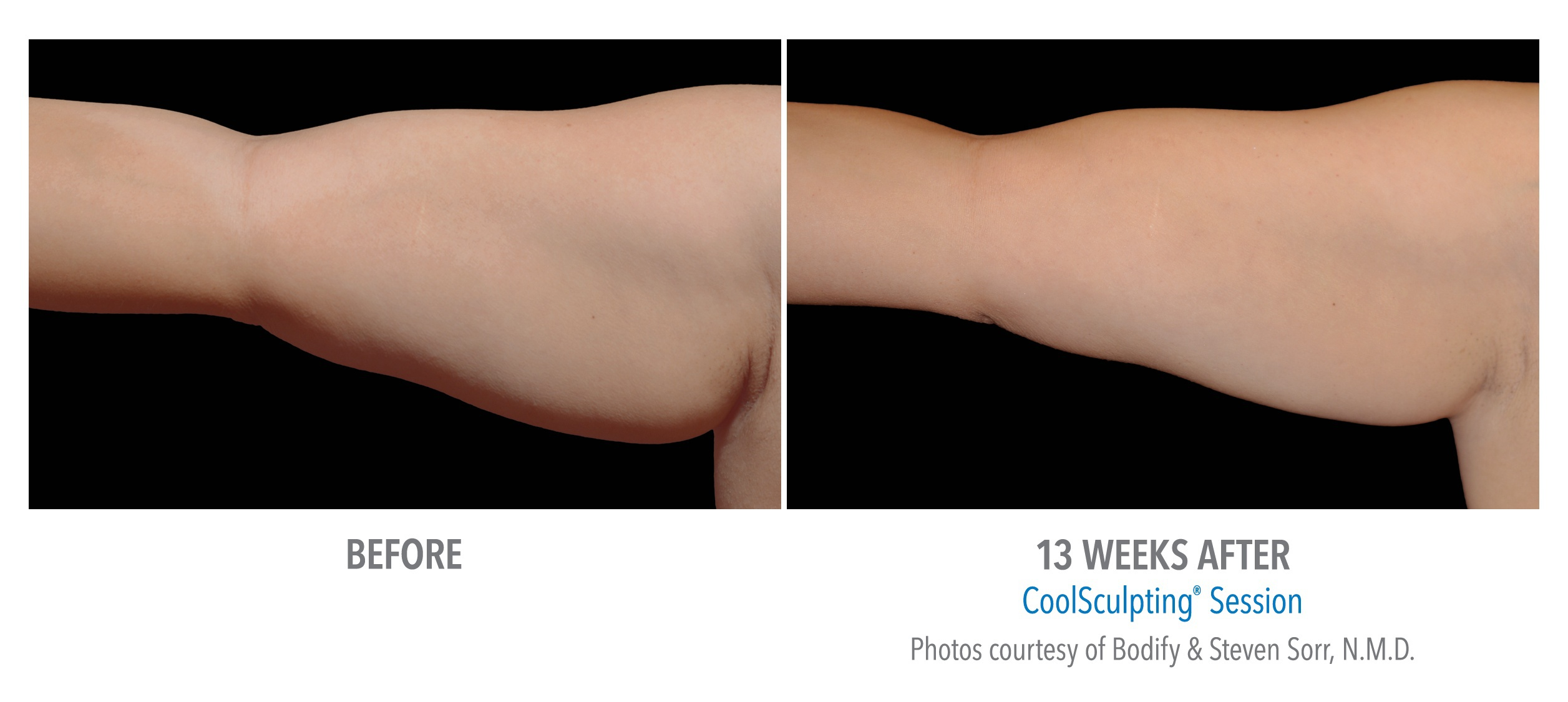Female Arm Before and After 12 Weeks