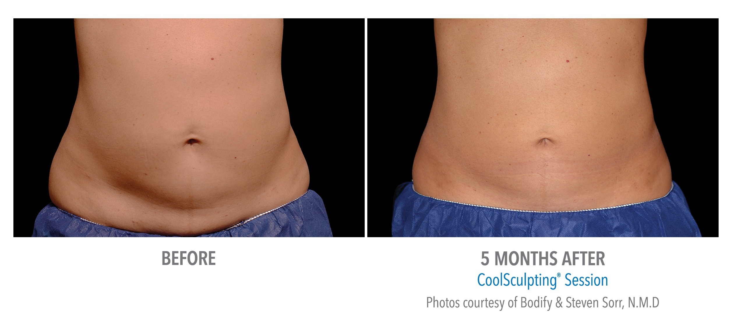 Female Stomach Before and After 12 Weeks