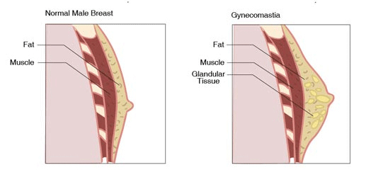 Gynecomastia Figure and Example
